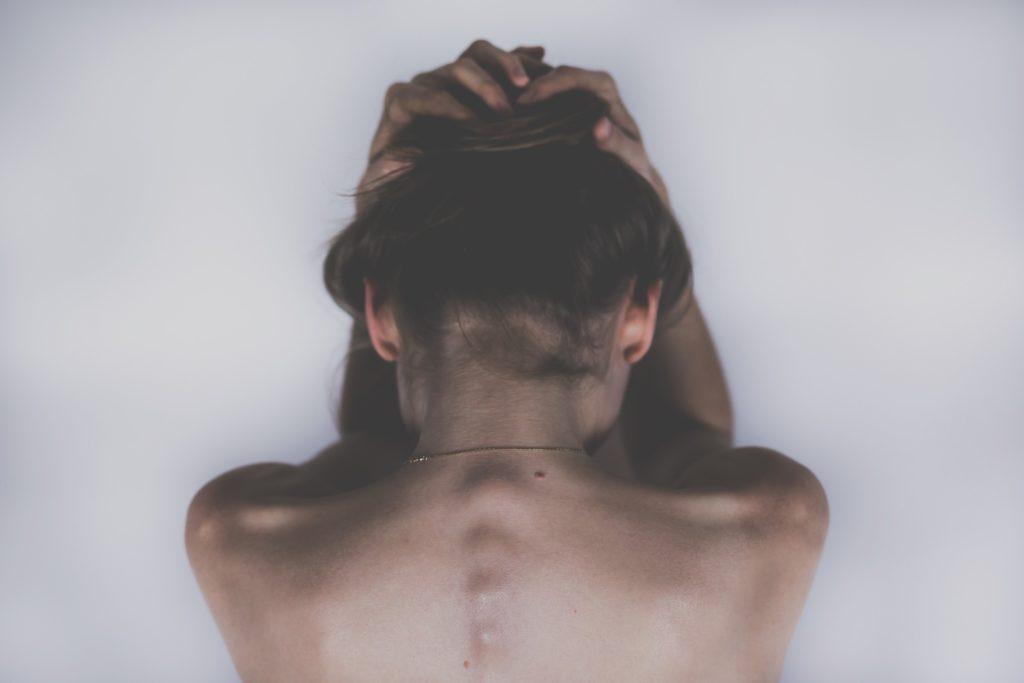 fisioterapia y osteopatía en la migraña